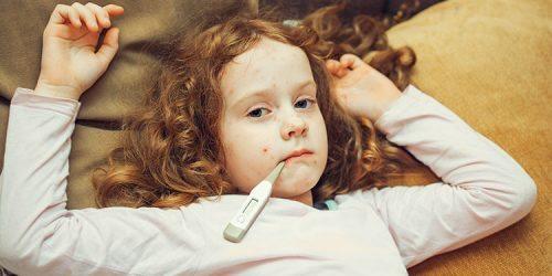 Spalničky u dětí